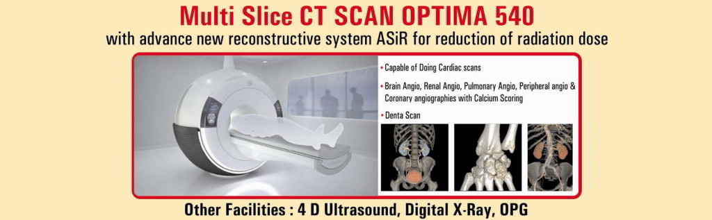 CT Scan Optima 540 -1
