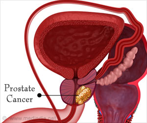 prostate-cancer-treatment1.jpg