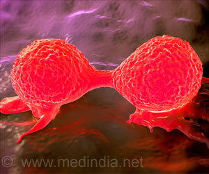 breakthrough-in-breast-cancer-treatment.jpg