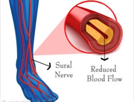 diabetes-and-hypertension-in-neuropathy.jpg